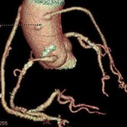 Coronary artery bypass grafts on CT