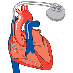 Pacemakers for slow heart rates